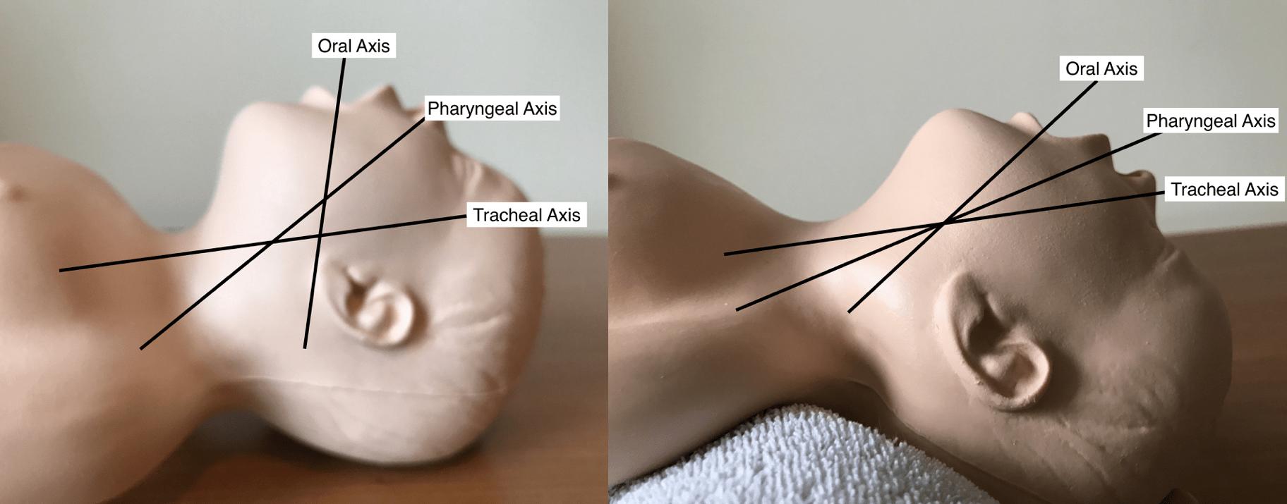 Direct Laryngoscopy   Paediatric Emergencies