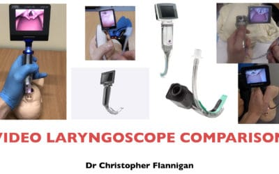 Video Laryngoscope Comparison 2019